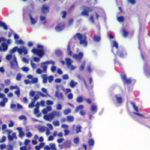A Beginner's Guide to Haematoxylin and Eosin Staining