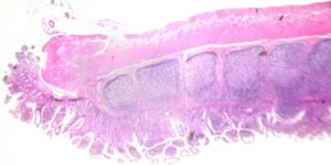 histology image of large intestine to depict tissue processing for histology