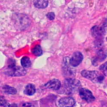 Digital Pathology – why you need it and how to choose the best camera for it