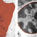 How to Take a Publication-Worthy Electron Micrograph