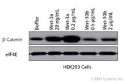 Tips and Tricks for Western Blotting and Antibody Selection