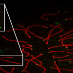 Super Resolution Microscopy: Improve Your Imaging Don't Reinvent It