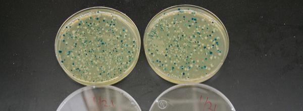 coli strain