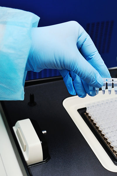 A Start to Finish Guide to Target Gene Validation Using Quantitative RT-PCR
