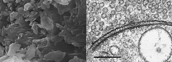 Electron microscopy image