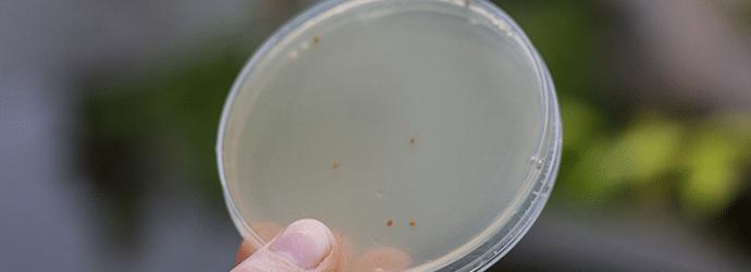 yeast plasmid