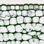 Herbaceous Dicot Stem: Cortex Collenchyma in Older Richinus