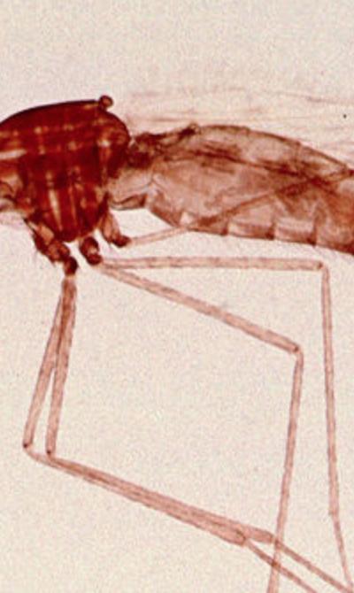 Understanding Malaria Parasite Pathogenesis by Cryo-Electron Microscopy