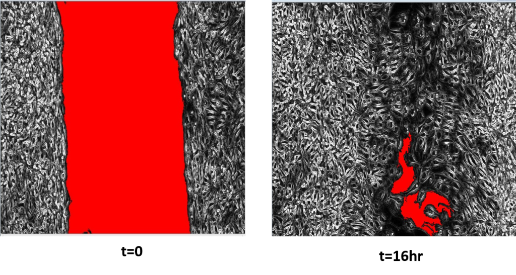Imaging and Analyzing Your Wound Healing Assay