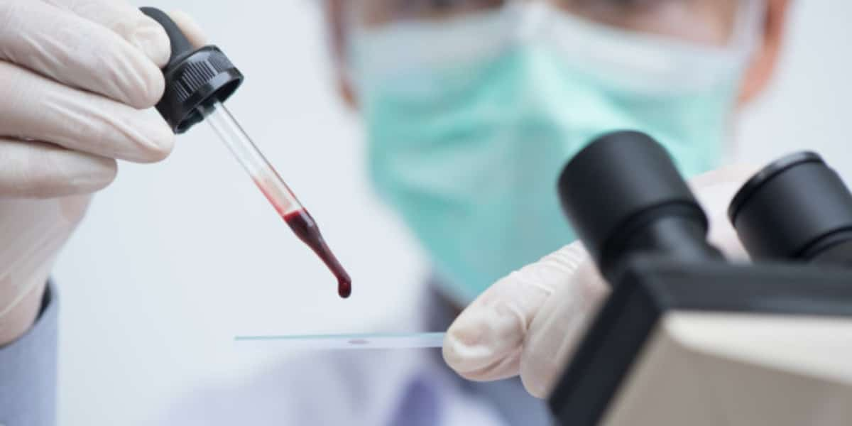 Scientist holding a blood smear slide with microscope in the foreground