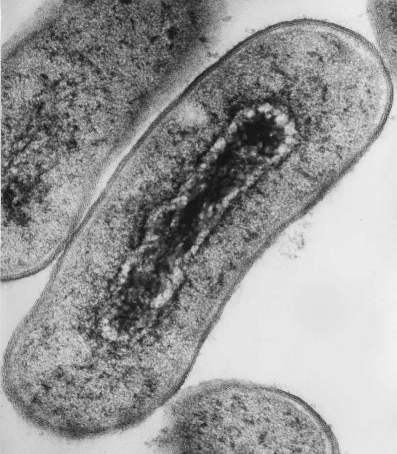 Escherichia coli under transmission electron microscopy