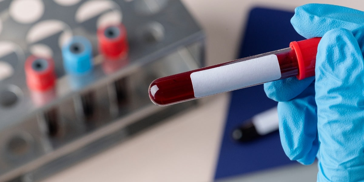 Blood collection tubes with red and blue caps